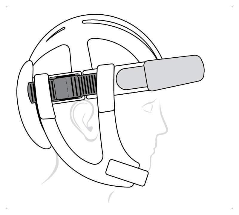 Starlight Flex, Stirnschutz