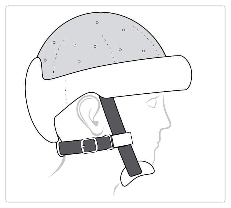 Starlight® Protect Plus, geschlossene Oberseite