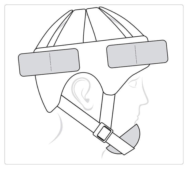 Starlight® Secure complete with accessories chin protection, forehead and neck protection